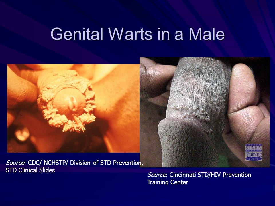 Genital Warts in a Male Source: CDC/ NCHSTP/ Division of STD Prevention, STD Clinical Slides.