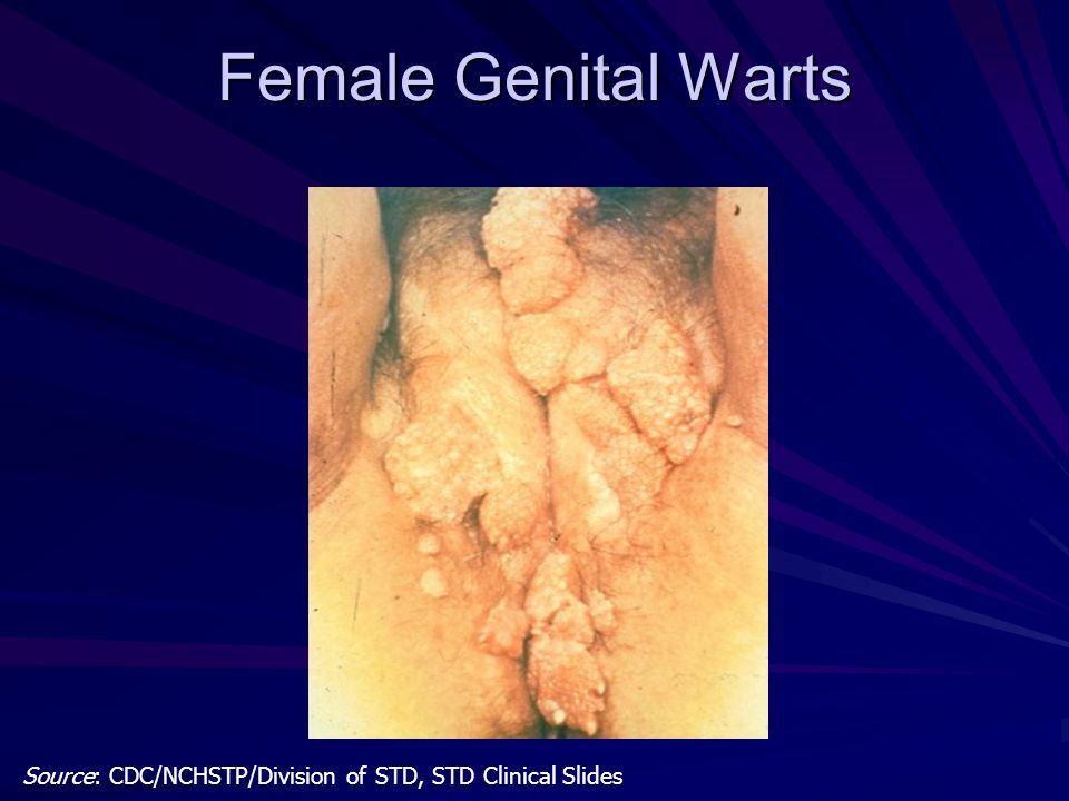Female Genital Warts Source: CDC/NCHSTP/Division of STD, STD Clinical Slides