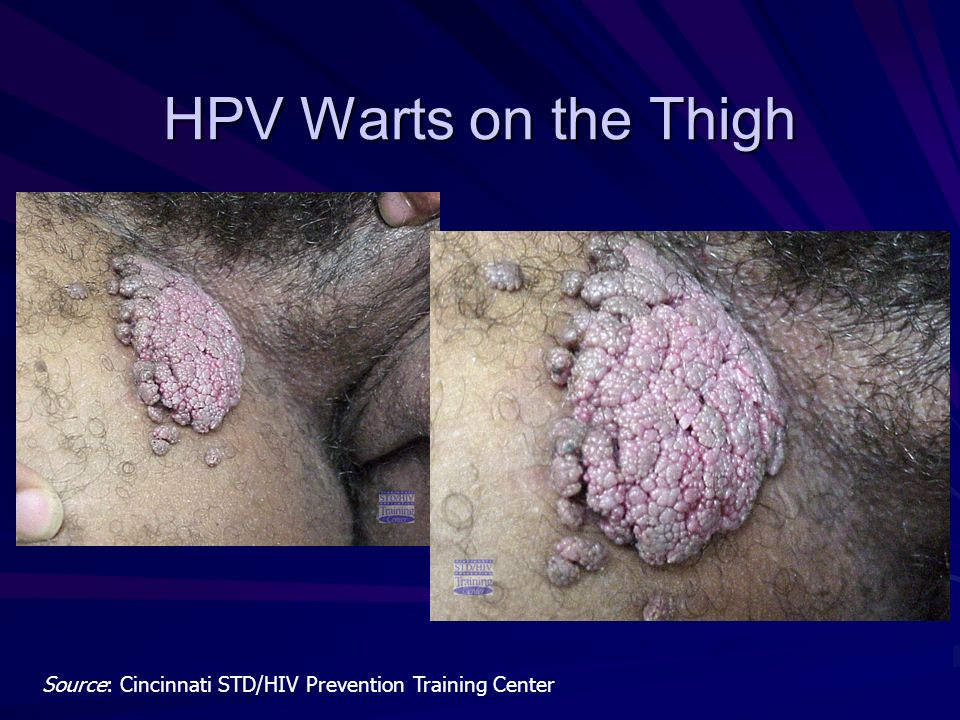 HPV Warts on the Thigh Source: Cincinnati STD/HIV Prevention Training Center