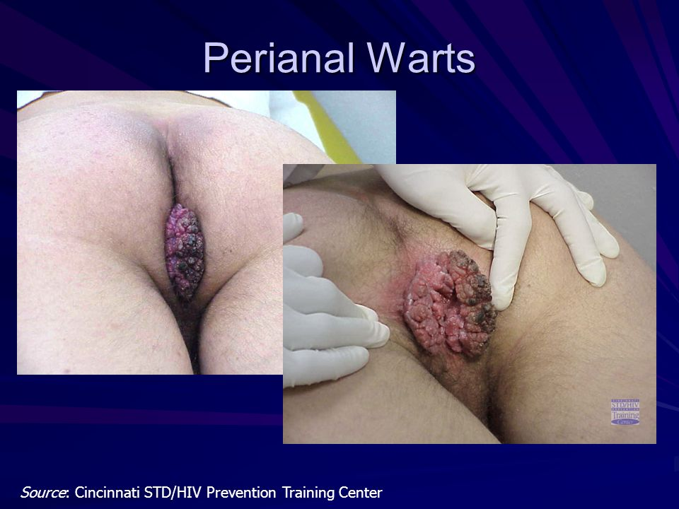 Perianal Warts Source: Cincinnati STD/HIV Prevention Training Center