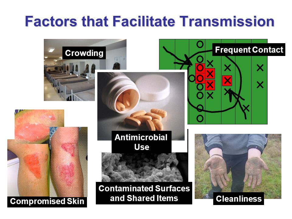 Factors that Facilitate Transmission