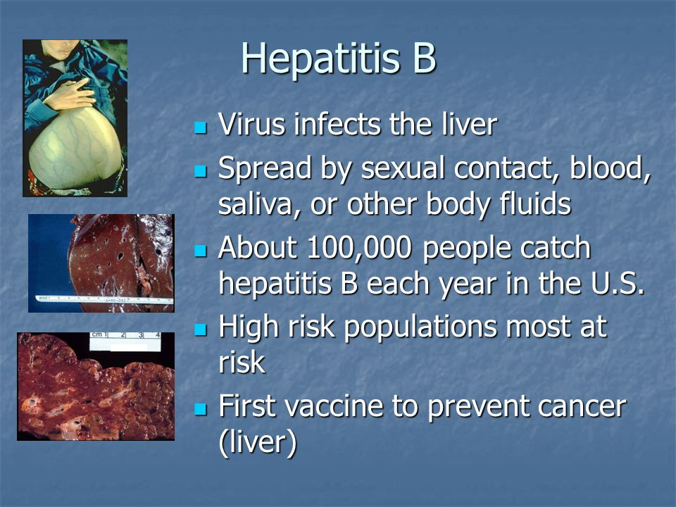 Hepatitis B Virus infects the liver