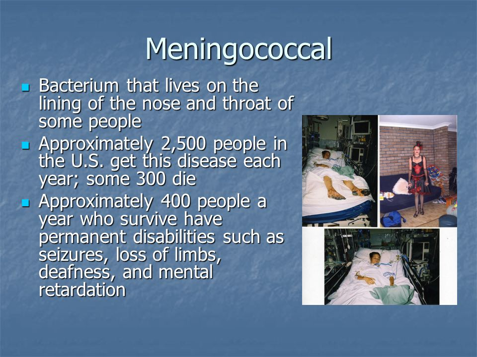 Meningococcal Bacterium that lives on the lining of the nose and throat of some people.
