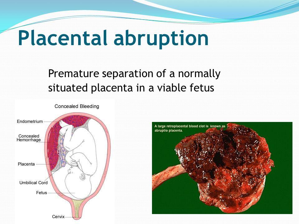 Antepartum Haemorrhage and Postpartum Haemorrhage