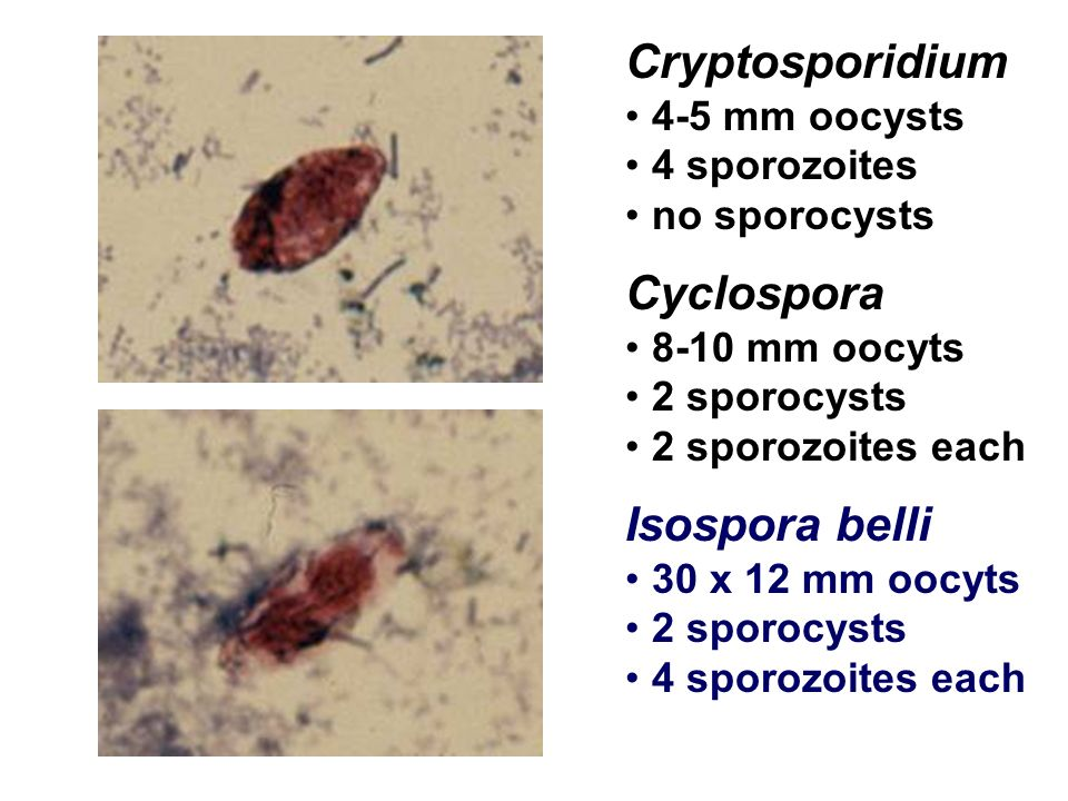 Cryptosporidium Cyclospora Isospora belli 4-5 mm oocysts 4 sporozoites