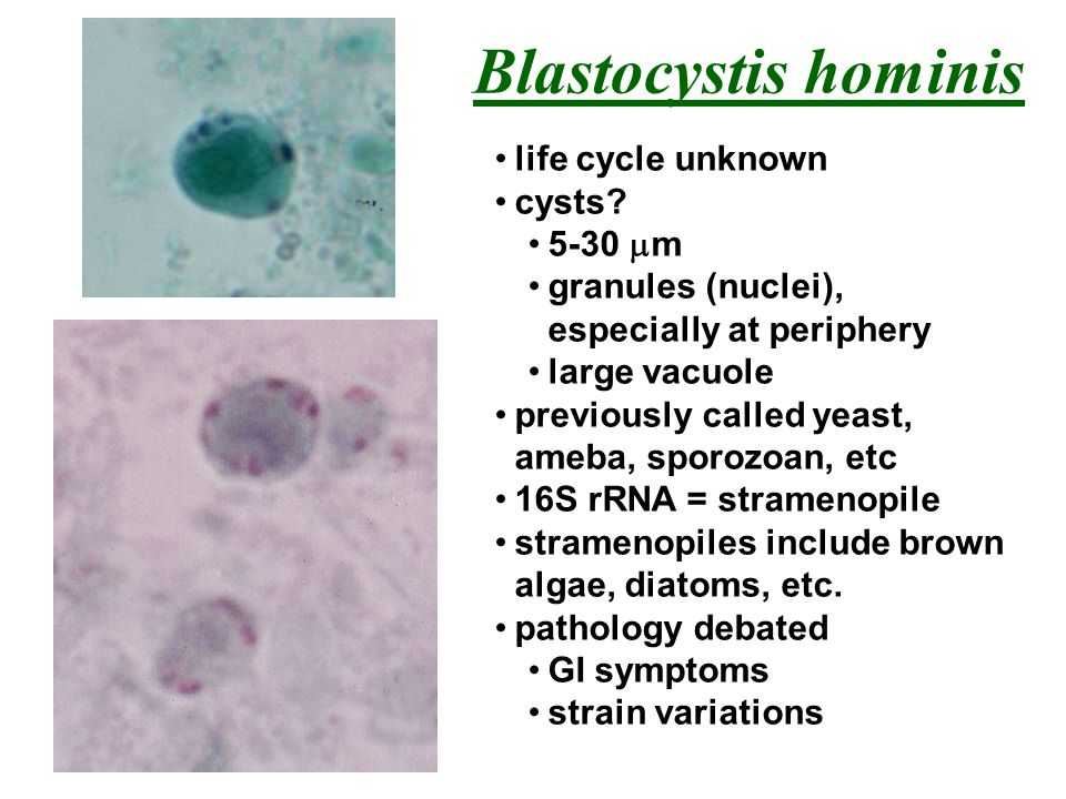 Blastocystis hominis life cycle unknown cysts 5-30 mm