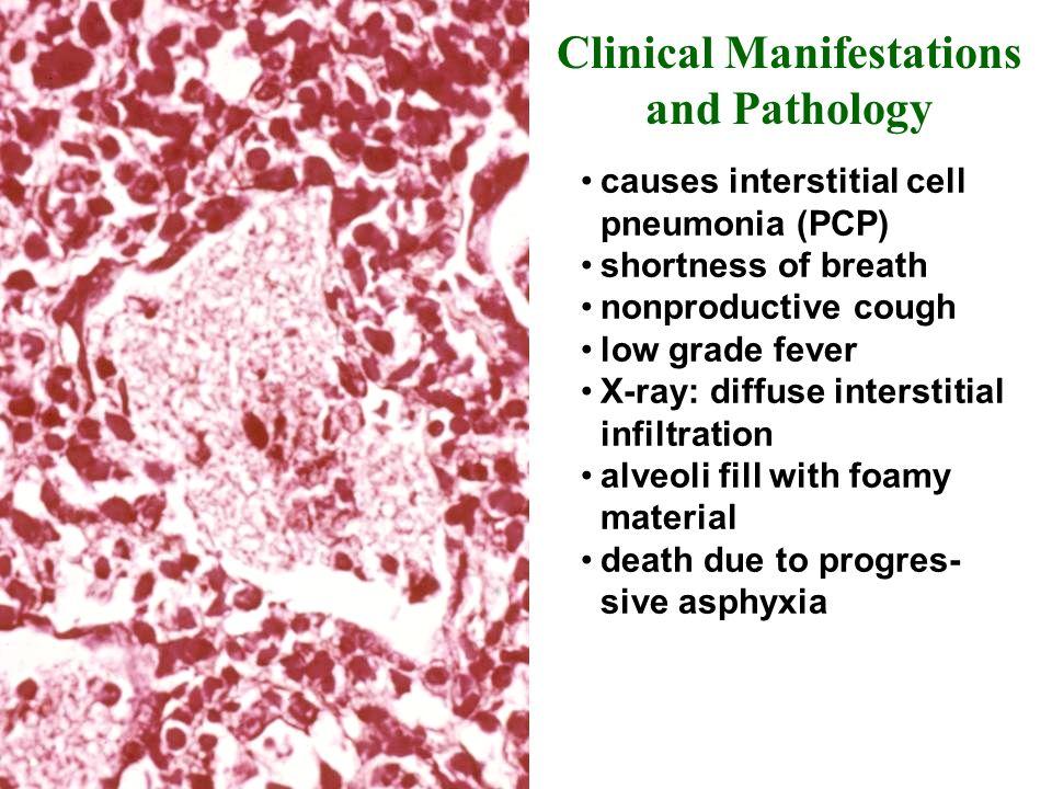 Clinical Manifestations and Pathology