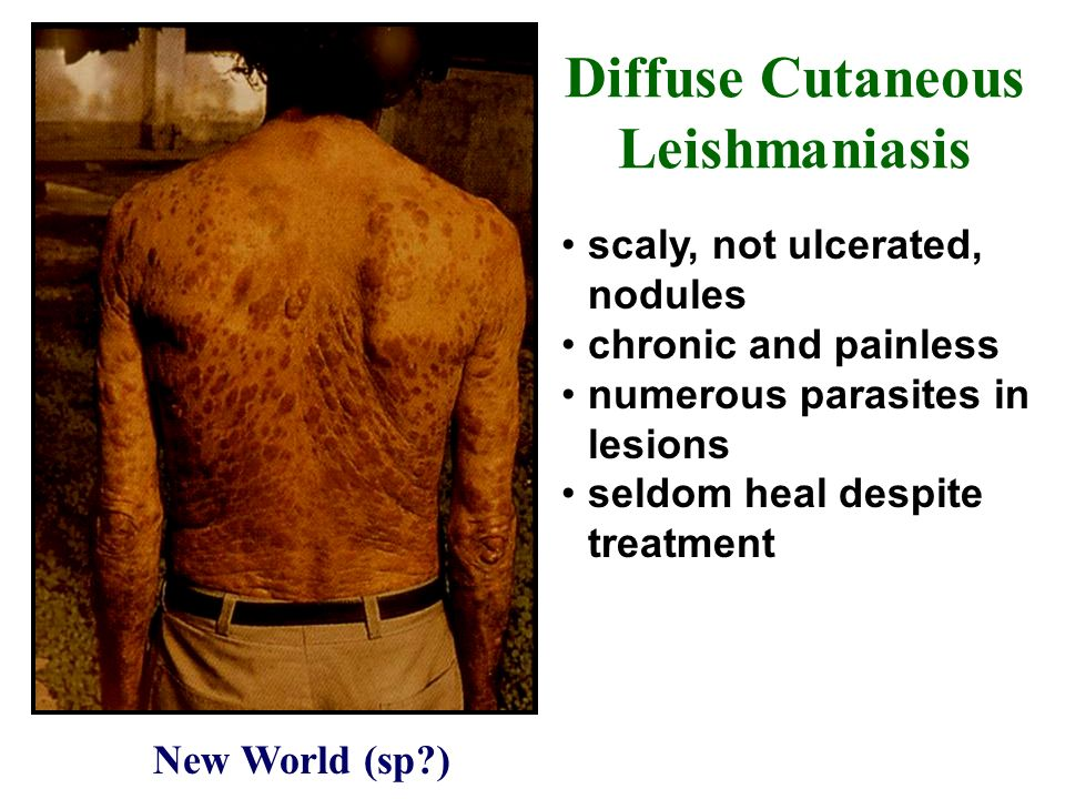 Diffuse Cutaneous Leishmaniasis