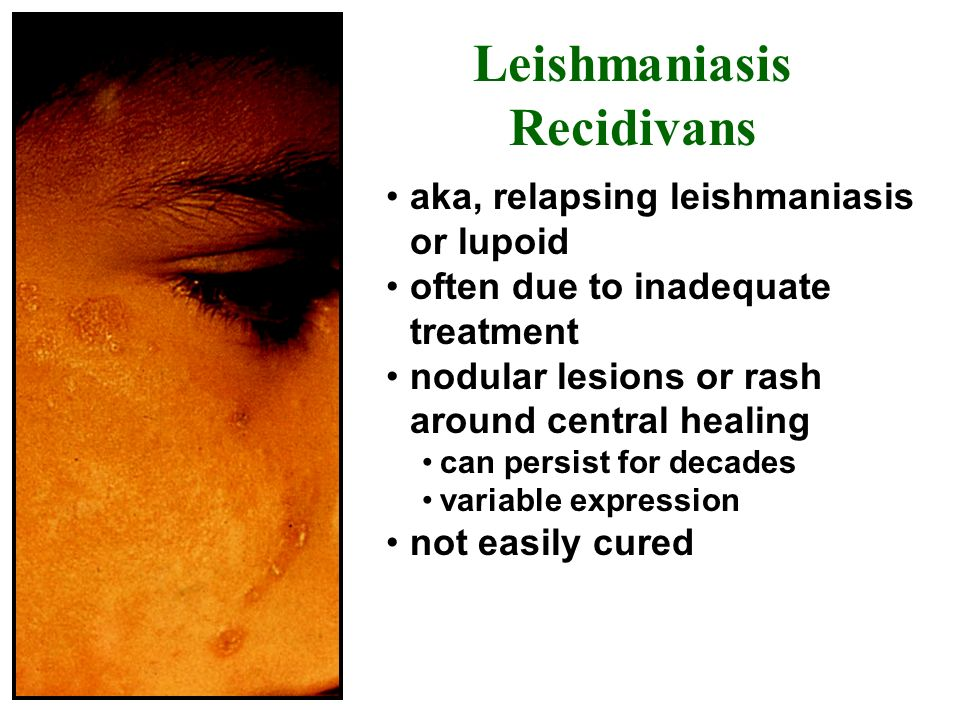 Leishmaniasis Recidivans