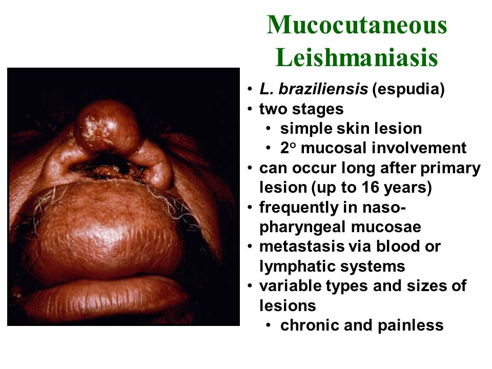 Mucocutaneous Leishmaniasis