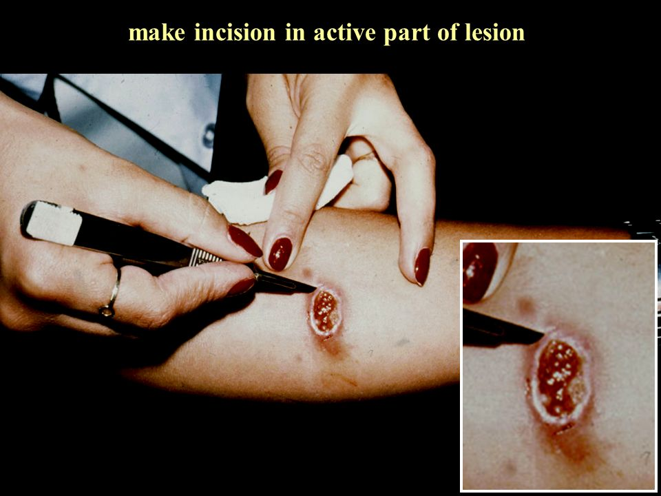 make incision in active part of lesion