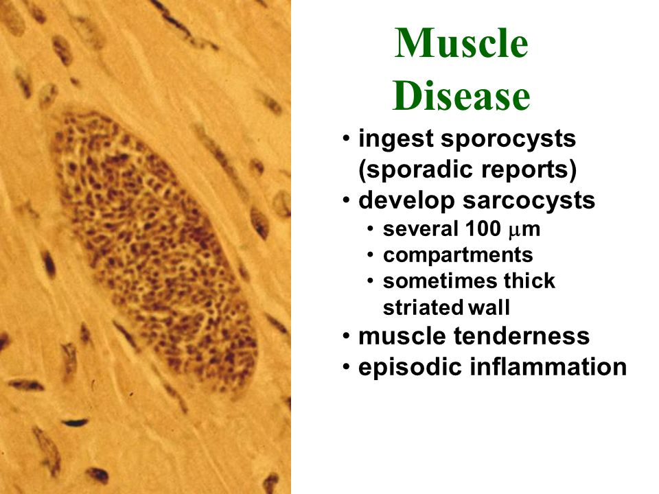 Muscle Disease ingest sporocysts (sporadic reports) develop sarcocysts