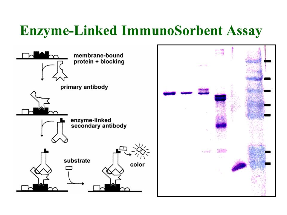 Enzyme-Linked ImmunoSorbent Assay