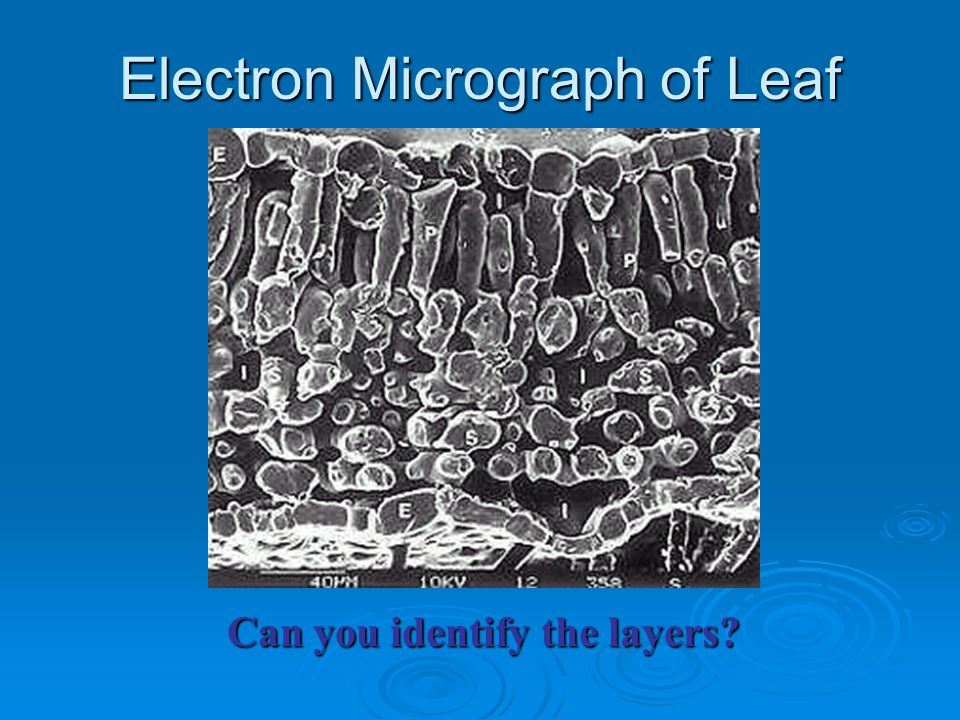 Electron Micrograph of Leaf