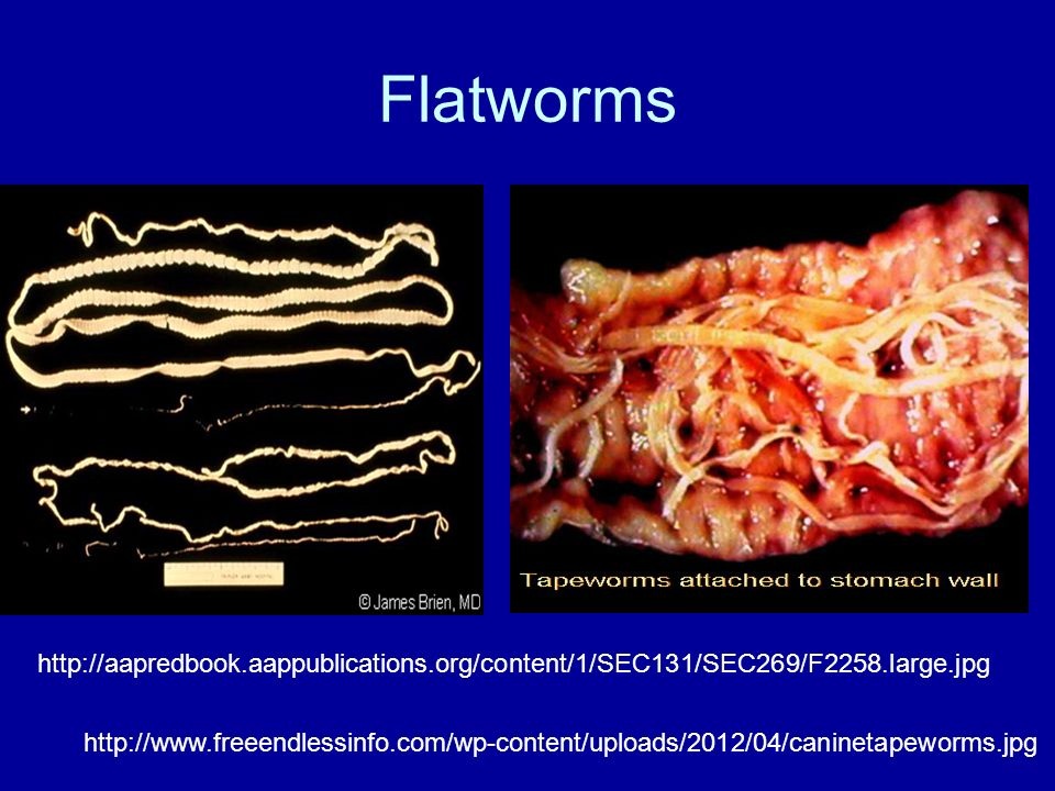 Flatworms http://aapredbook.aappublications.org/content/1/SEC131/SEC269/F2258.large.jpg.