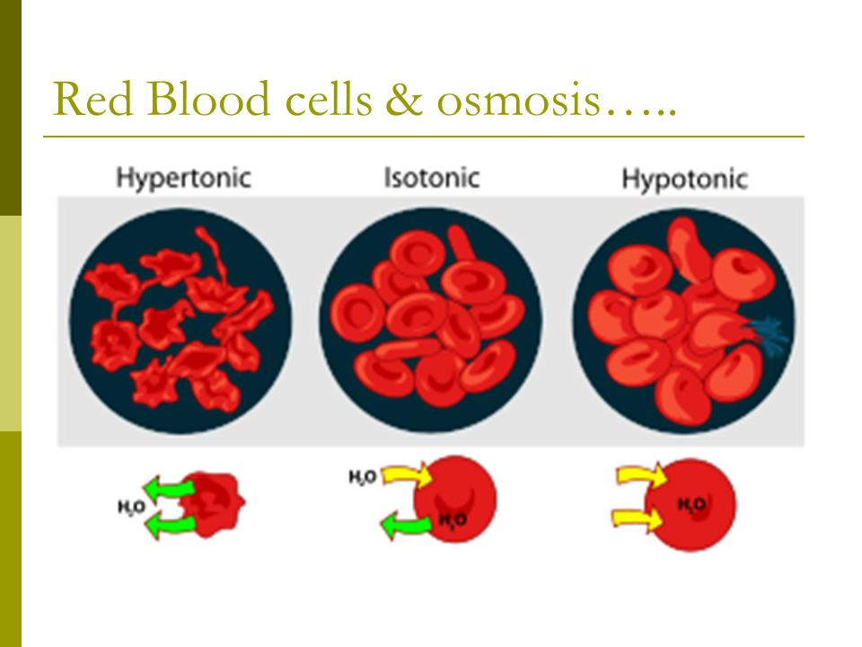Red Blood cells & osmosis…..