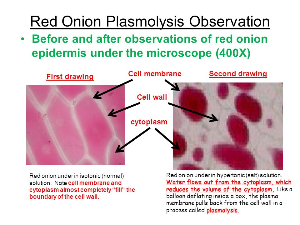 epidermic cell observation Since both onion epidermal and human epithelial cells are easily obtained and  prepared for microscopy, a biology teacher may ask you to explain the.