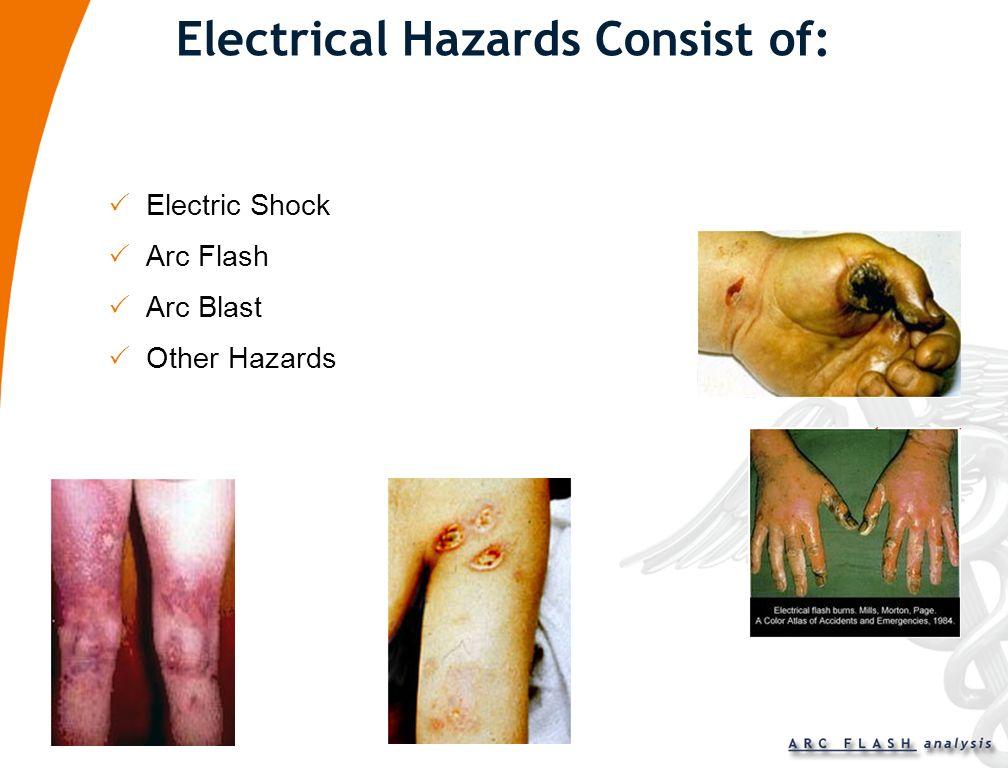 Electrical Hazards Consist of: