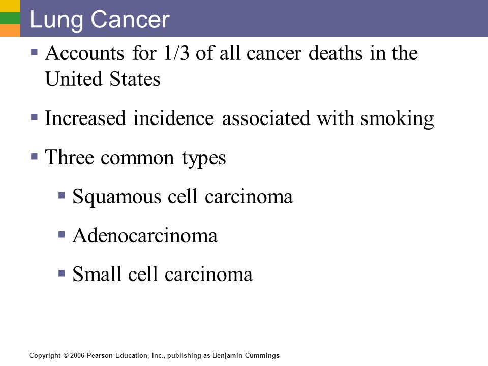 Lung Cancer Accounts for 1/3 of all cancer deaths in the United States