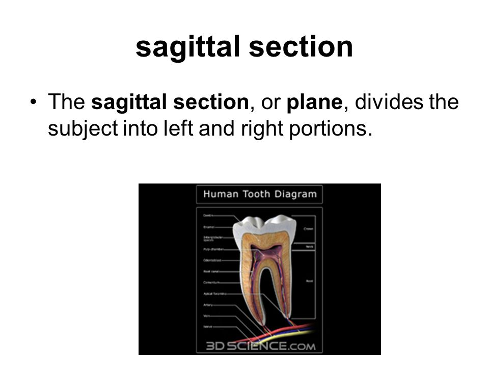 sagittal section The sagittal section, or plane, divides the subject into left and right portions.
