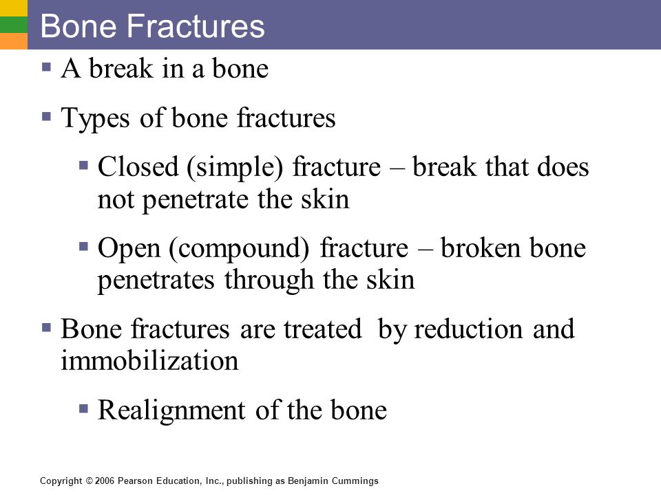 Bone Fractures A break in a bone Types of bone fractures