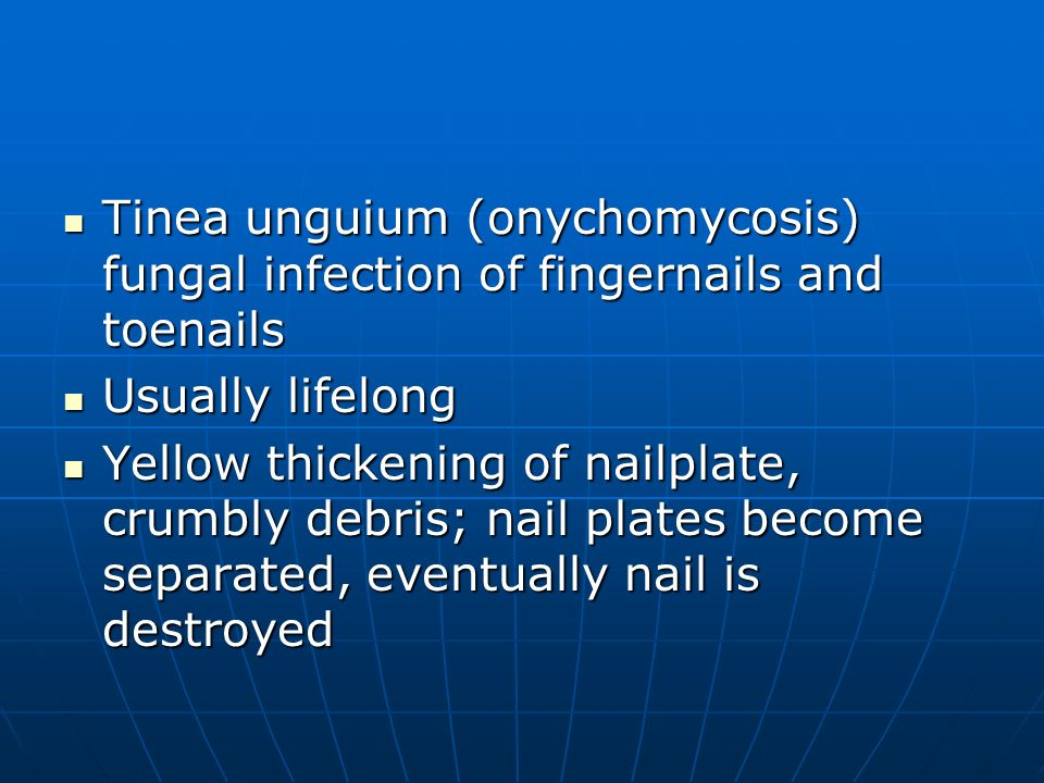 Tinea unguium (onychomycosis) fungal infection of fingernails and toenails