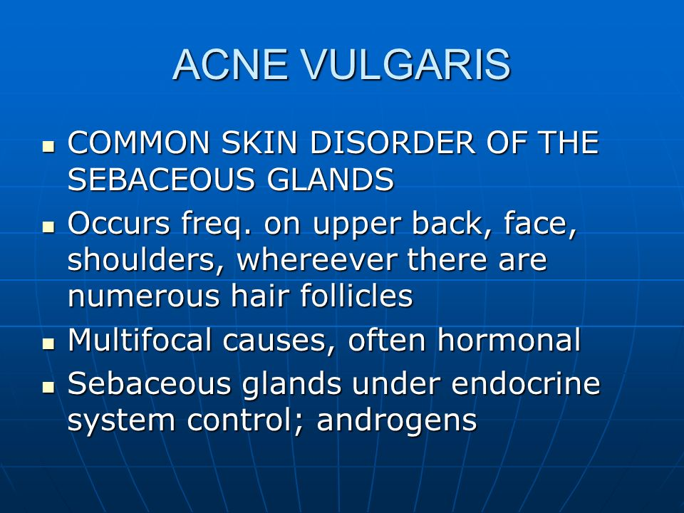ACNE VULGARIS COMMON SKIN DISORDER OF THE SEBACEOUS GLANDS