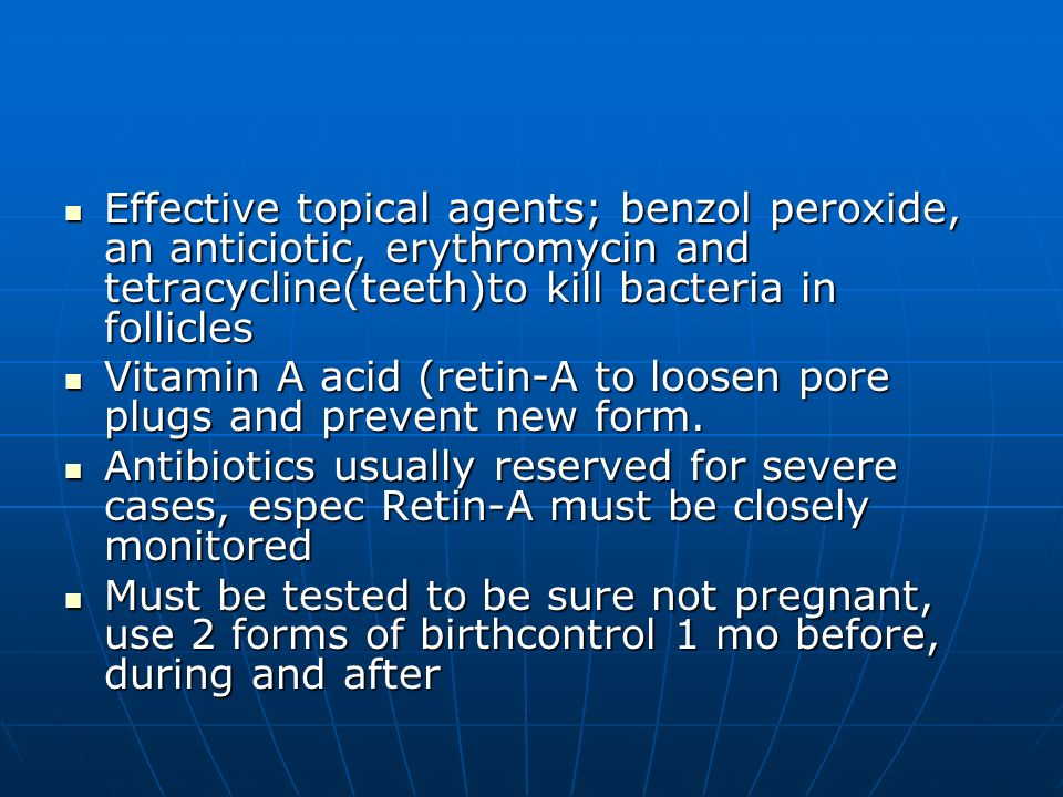 Effective topical agents; benzol peroxide, an anticiotic, erythromycin and tetracycline(teeth)to kill bacteria in follicles