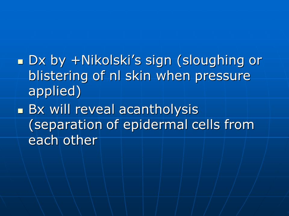 Dx by +Nikolski's sign (sloughing or blistering of nl skin when pressure applied)