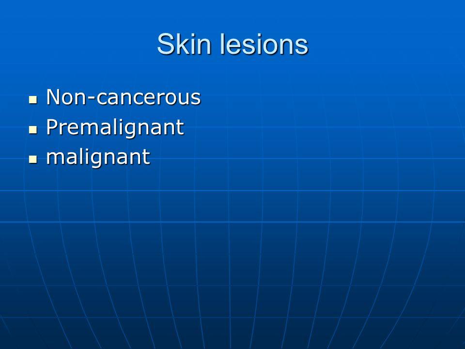 Skin lesions Non-cancerous Premalignant malignant