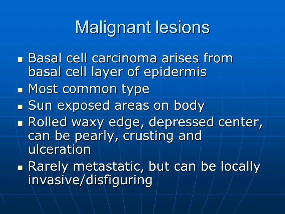 Malignant lesions Basal cell carcinoma arises from basal cell layer of epidermis. Most common type.