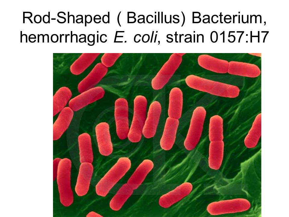 Rod-Shaped ( Bacillus) Bacterium, hemorrhagic E. coli, strain 0157:H7