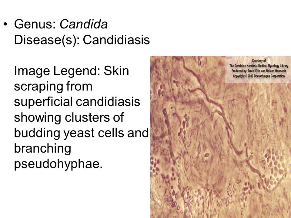 Genus: Candida Disease(s): Candidiasis Image Legend: Skin scraping from superficial candidiasis showing clusters of budding yeast cells and branching pseudohyphae.