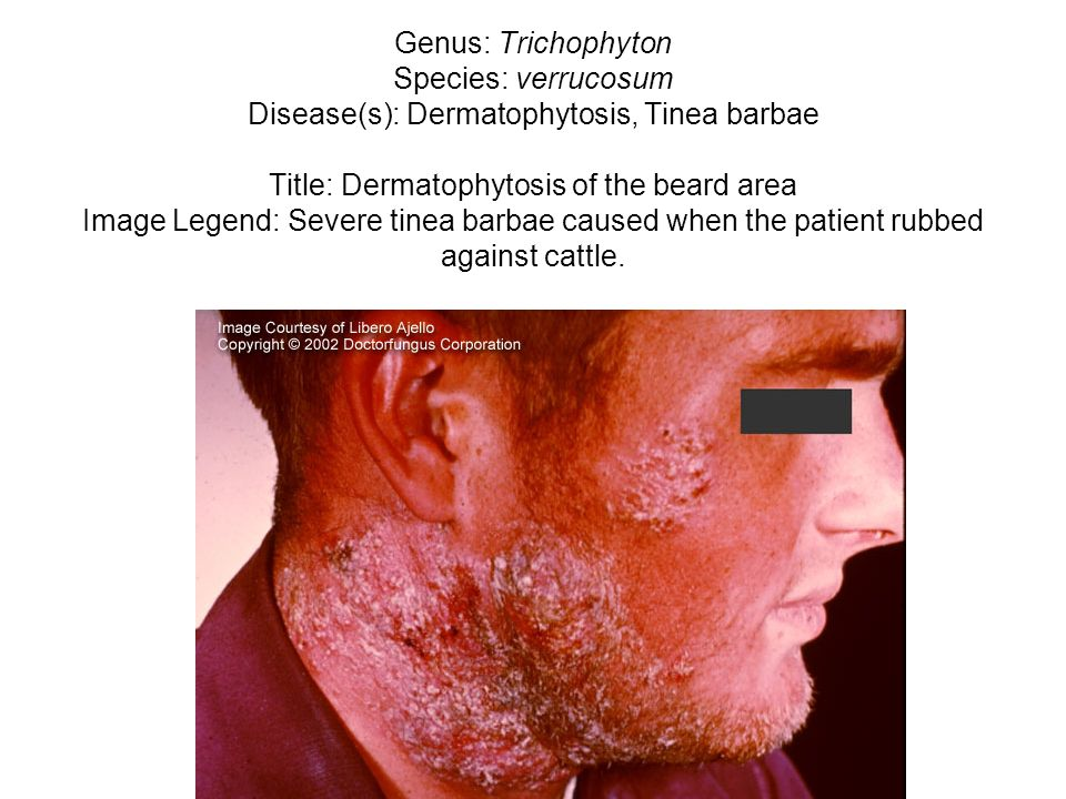 Genus: Trichophyton Species: verrucosum Disease(s): Dermatophytosis, Tinea barbae Title: Dermatophytosis of the beard area Image Legend: Severe tinea barbae caused when the patient rubbed against cattle.
