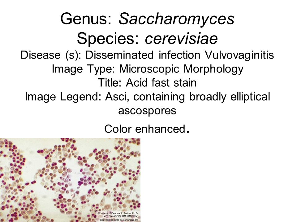 Genus: Saccharomyces Species: cerevisiae Disease (s): Disseminated infection Vulvovaginitis Image Type: Microscopic Morphology Title: Acid fast stain Image Legend: Asci, containing broadly elliptical ascospores Color enhanced.