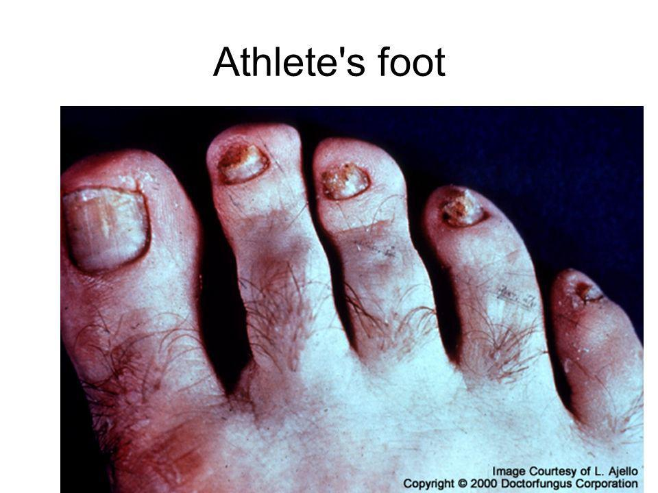 Athlete s foot