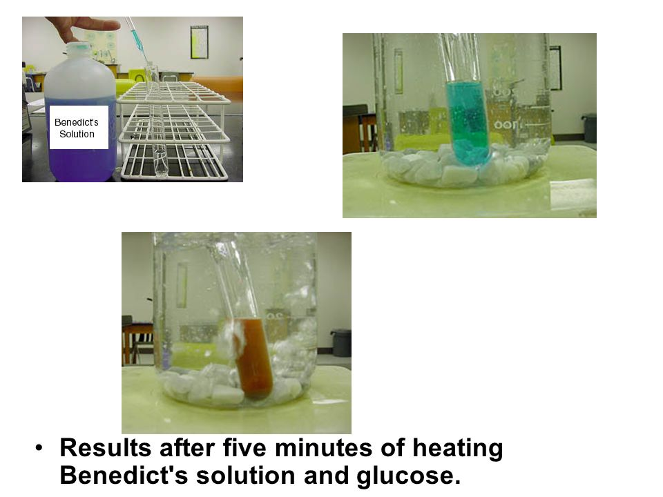 Results after five minutes of heating Benedict s solution and glucose.