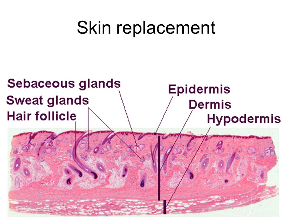 Skin replacement