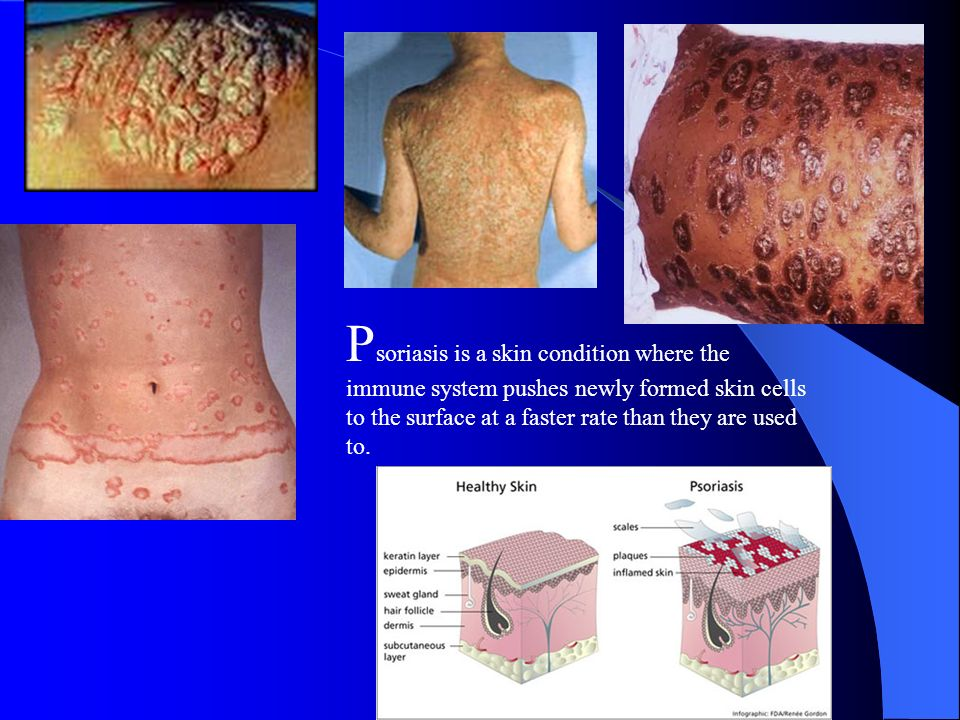Psoriasis is a skin condition where the immune system pushes newly formed skin cells to the surface at a faster rate than they are used to.