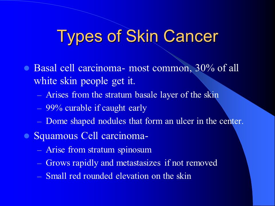 Types of Skin Cancer Basal cell carcinoma- most common, 30% of all white skin people get it. Arises from the stratum basale layer of the skin.