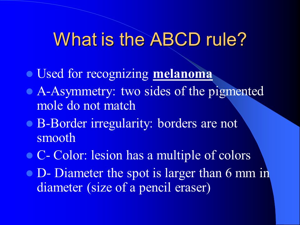 What is the ABCD rule Used for recognizing melanoma