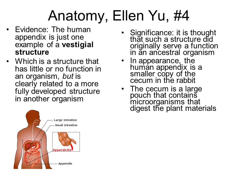 Anatomy, Ellen Yu, #4 Evidence: The human appendix is just one example of a vestigial structure.