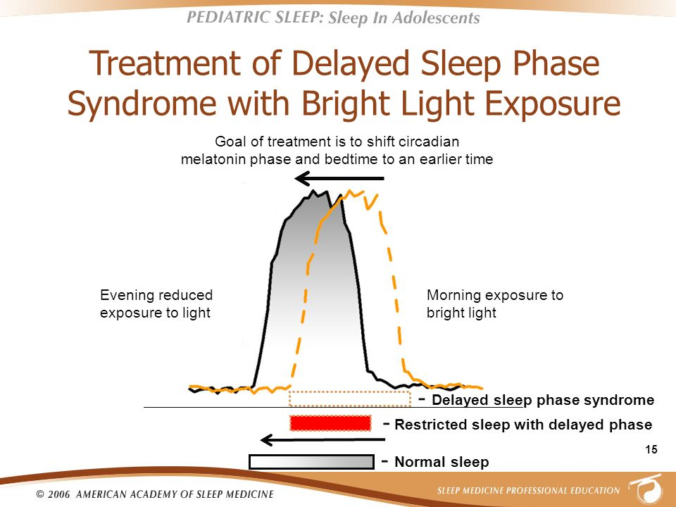 Treatment of Delayed Sleep Phase Syndrome with Bright Light Exposure