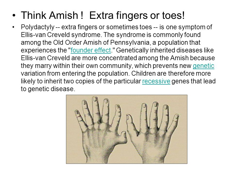 Think Amish ! Extra fingers or toes!