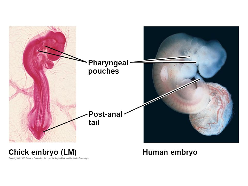 Pharyngeal pouches Post-anal tail Chick embryo (LM) Human embryo