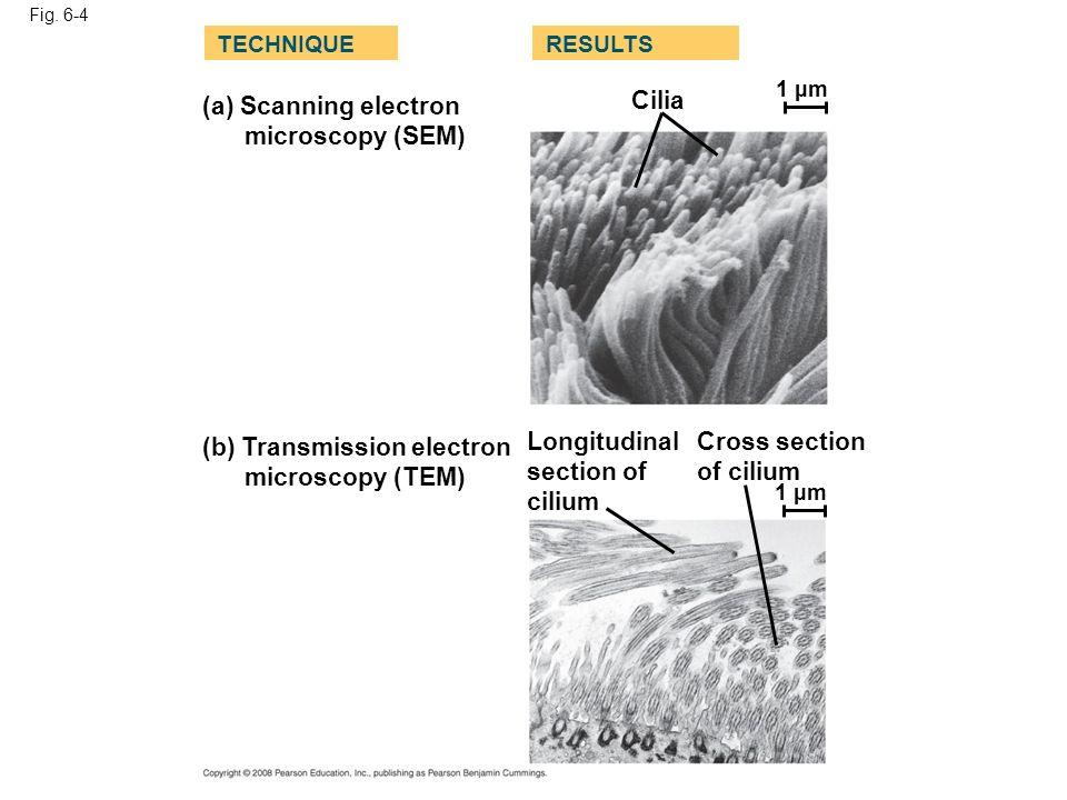 (b) Transmission electron microscopy (TEM) Longitudinal section of