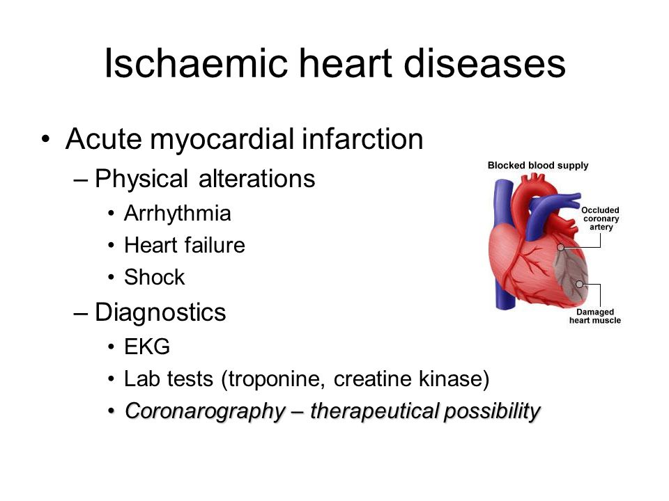 diagnosing and treating acute myocardial infarction Or acute myocardial infarction the goals of treatment for myocardial infarction are to relieve chest pain  (7) myocardial infarction (heart attack).