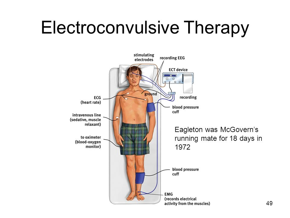 electroconvulsive therapy Learn when a psychiatrist might suggest electroconvulsive therapy (ect) or other forms of brain stimulation.