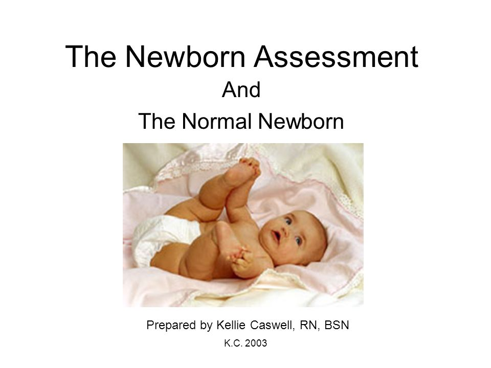 The Newborn Assessment