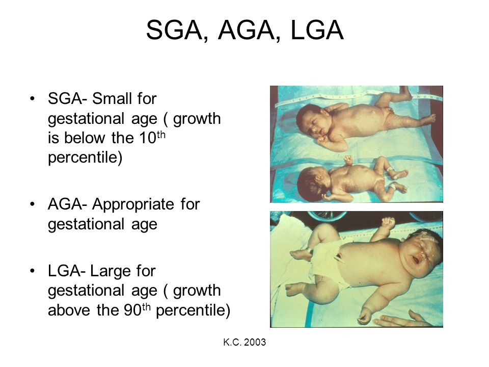 SGA, AGA, LGA SGA- Small for gestational age ( growth is below the 10th percentile) AGA- Appropriate for gestational age.